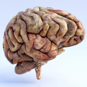 Wet brain